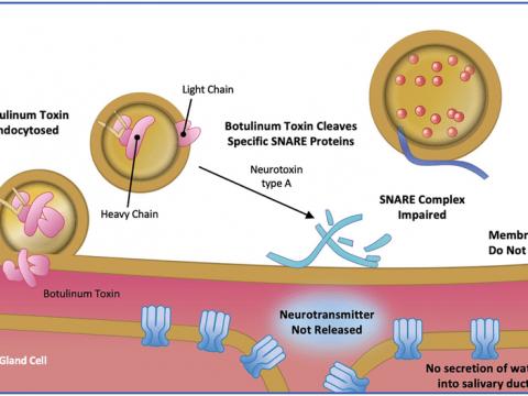 Botulinum toxin - سم بوتولینیوم
