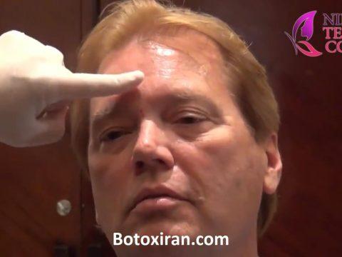 آموزش تزریق بوتاکس به پیشانی